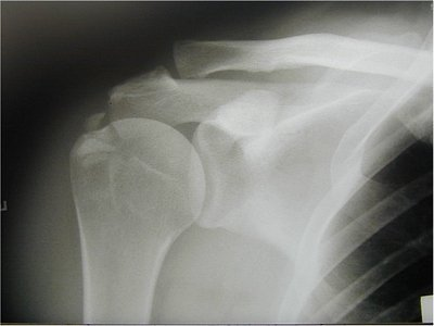 calcification on x ray